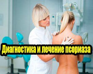 Диагностика и лечение псориаза