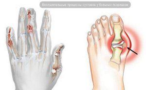 Псориатический артрит руки и ноги