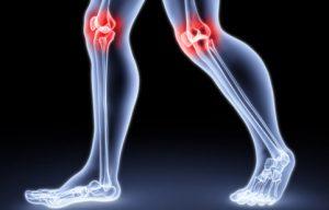Коленный псориатический артрит