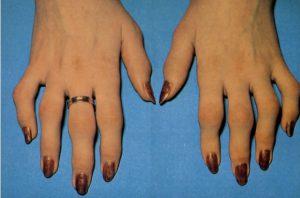 Изменение пальцев рук