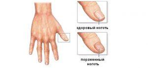 Здоровый и пораженный ноготь