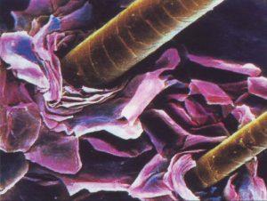 Себорейный псориаз