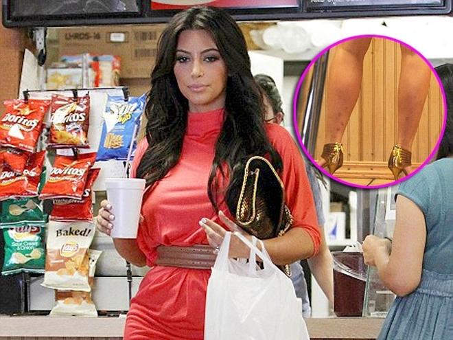 Ким Кардашьян с псориазом