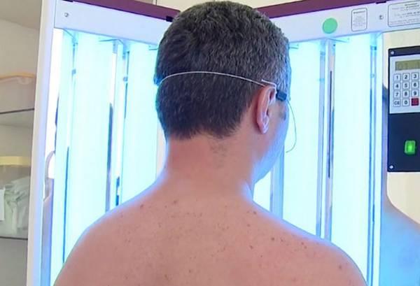 Ультрафиолет при псориазе