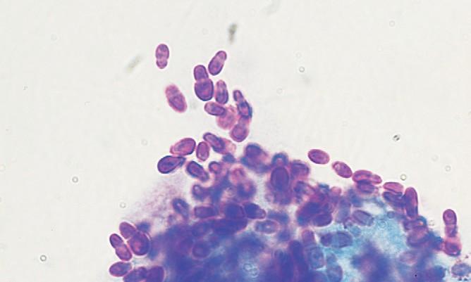 Малассезионный дерматит