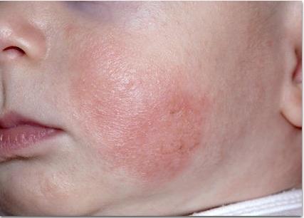 Аллергический дерматит у грудного ребёнка