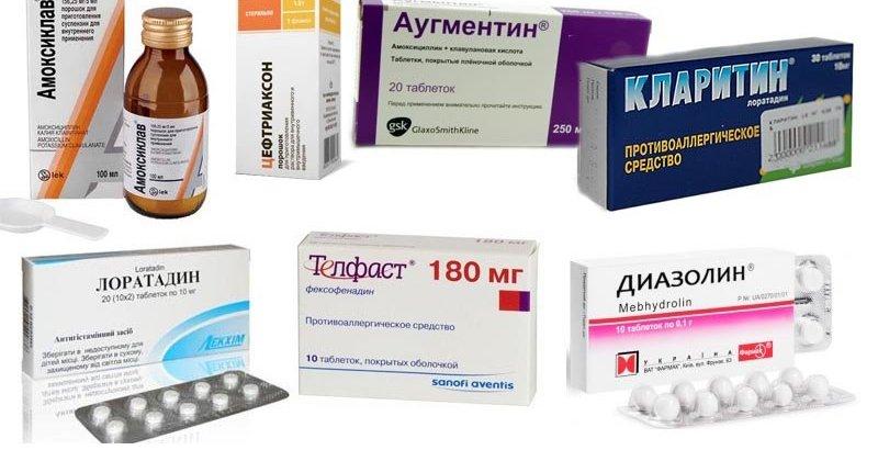 Применение антигистаминной терапии