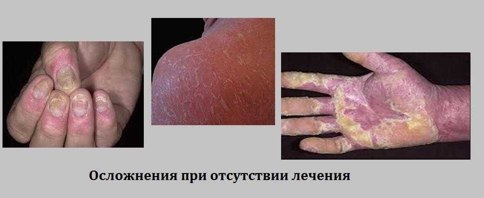 Фото осложнений, которые возникают при отсутствии лечения
