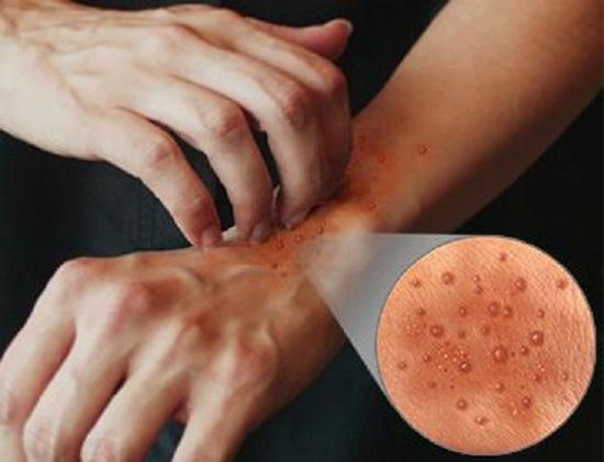 Герпетиформный дерматит Дюринга: методы его выявления
