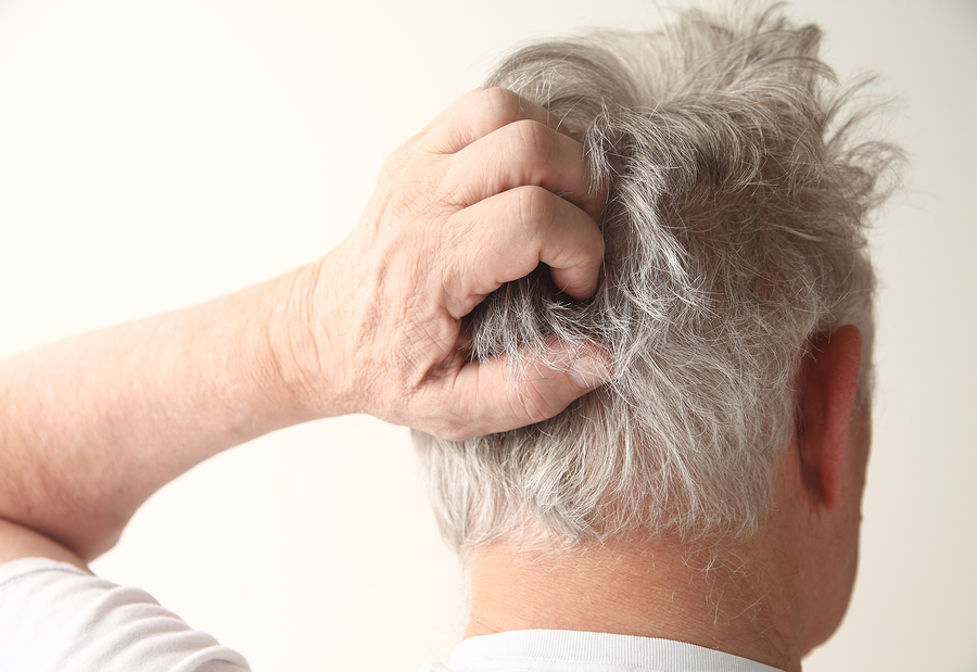 Проблемы головного дерматита