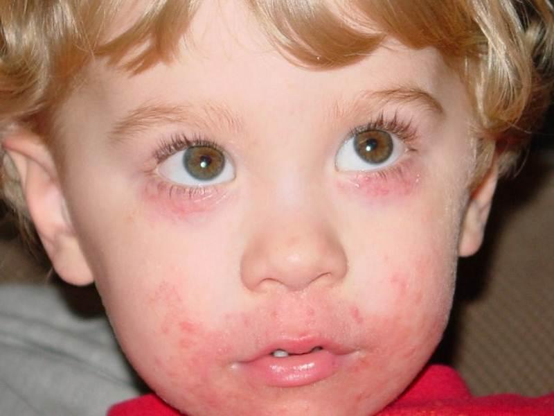 Аллергический дерматит в паху у детей 31