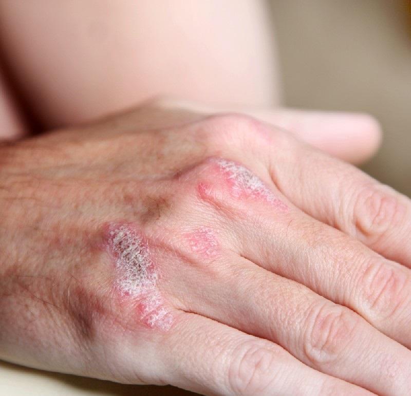 Псориаз На Ногтях Лечение Лазером