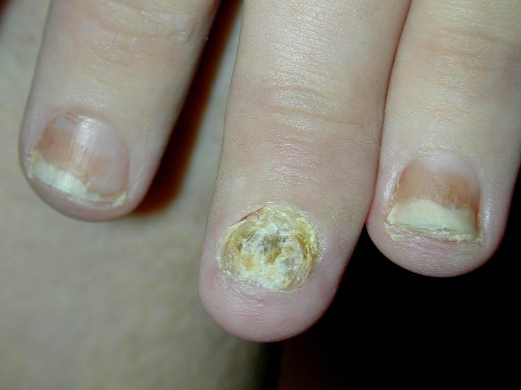 Псориаз это грибок или нет различия и связь заболеваний