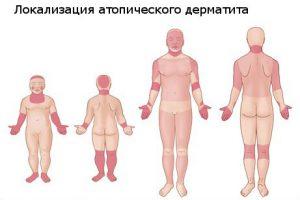 Места порожения дерматита