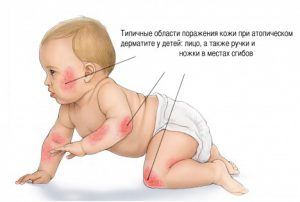 Места появления дерматита