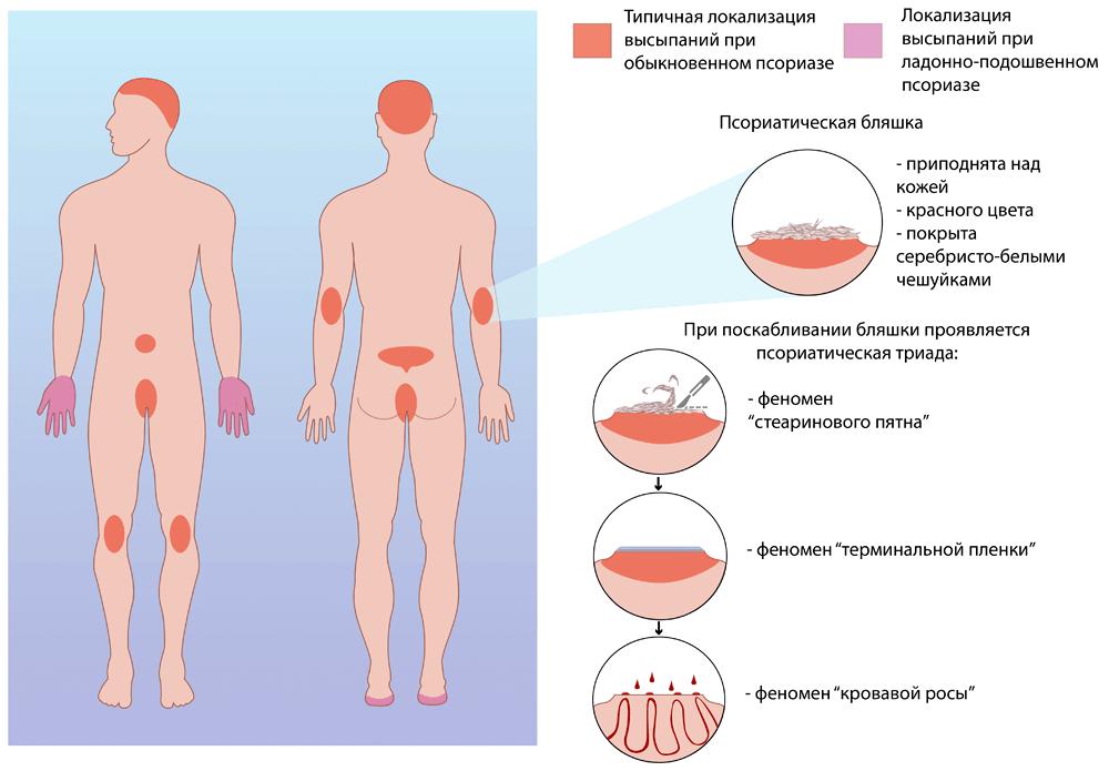 Локализация псориаза