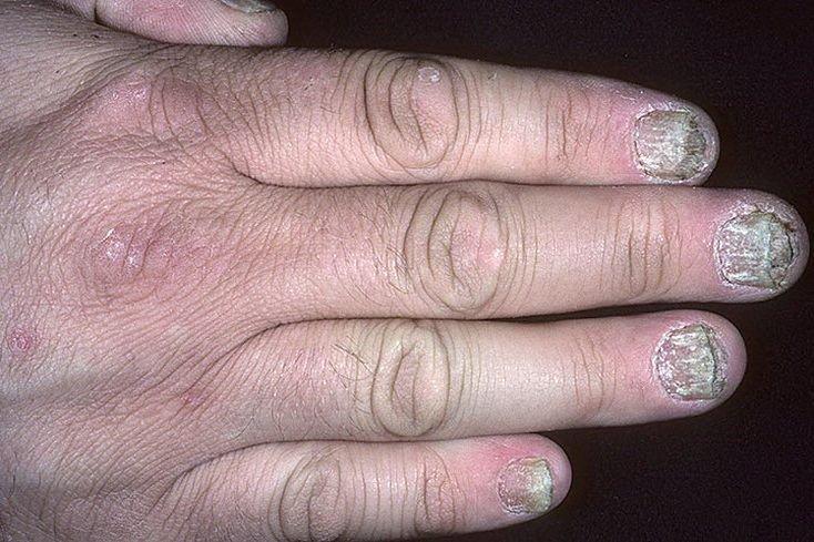Псориаз на руках и ладонях причины симптомы диагностика лечение