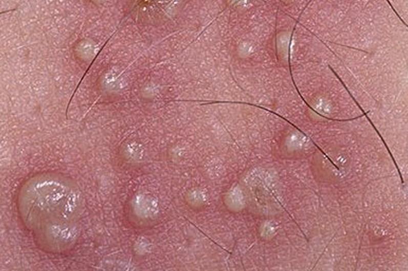 Пузырчатый дерматит