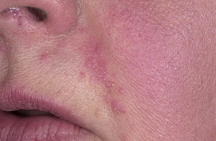 Розацеаподобный дерматит