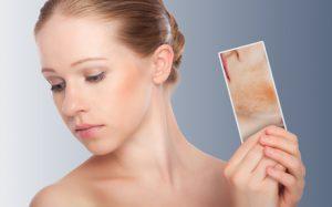 Cеборейный дерматит лица