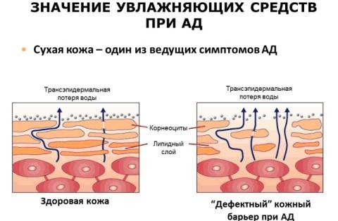 значение атопического дерматита