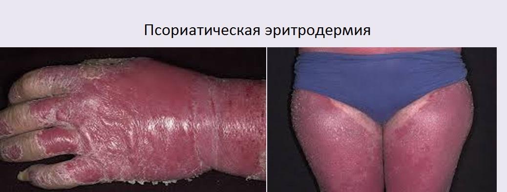 Чешуйчатый лишай у человека фото лечение причины и симптомы
