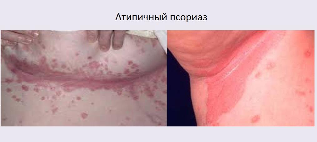 Дипроспан в лечении псориаза
