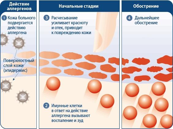 epidemiologiya-ekzema-i-psoriaz