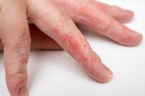 Появление сухой экземы на руках