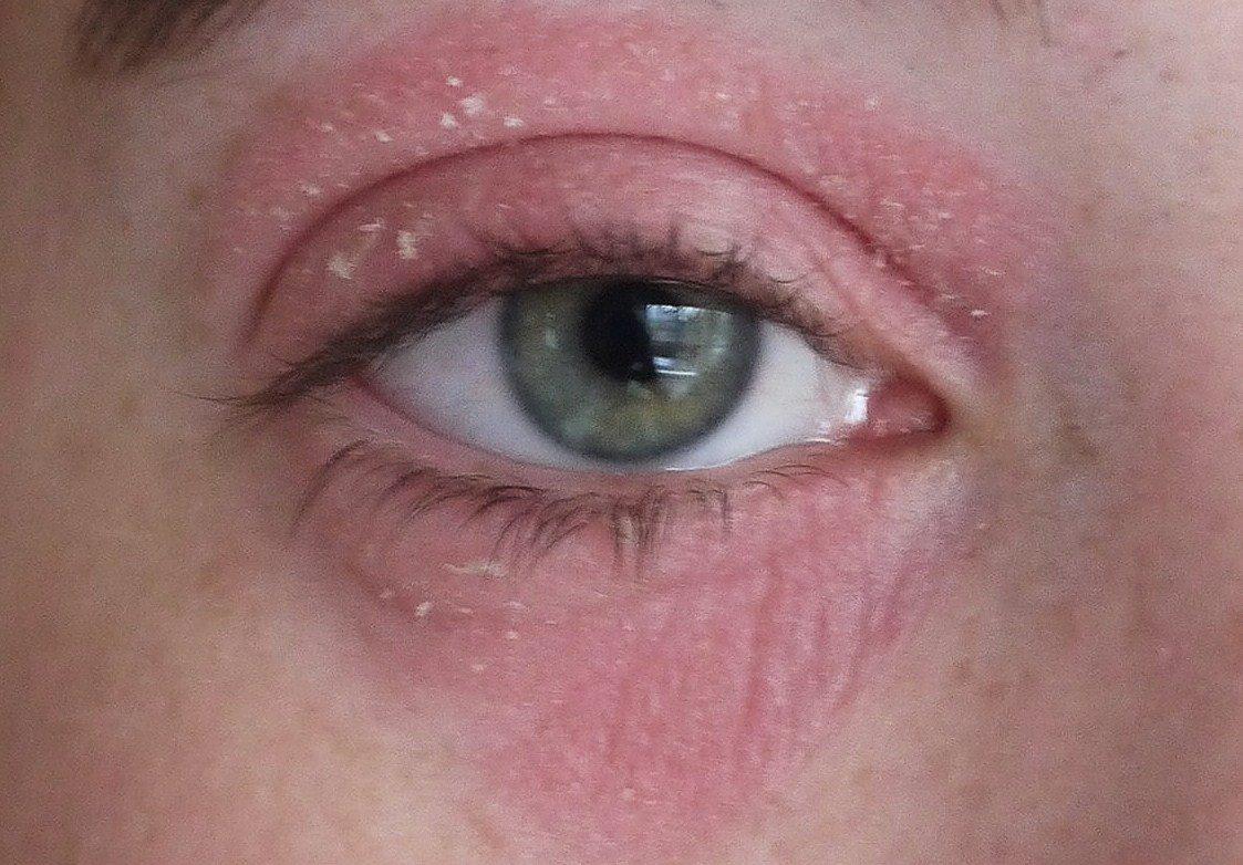 Экзема на глазах: описание болезни и рекомендации к лечению