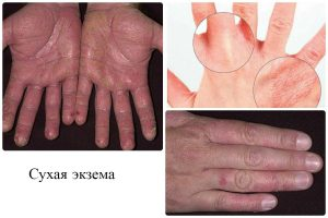 Сухая экзема кистей рук