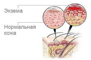 Сравнение здоровой и больной кожи