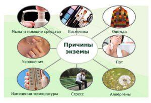 Причины появление экземы на теле