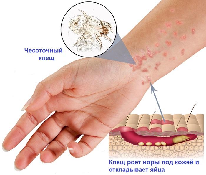 чесоточный клещу человека лечение фото