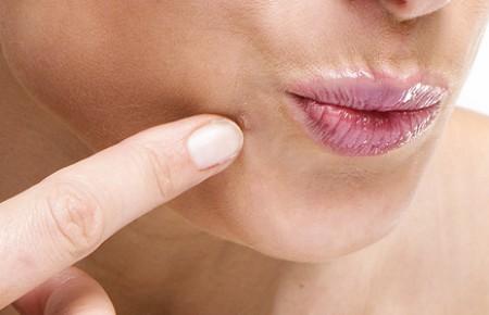 Как избавится от воспаления