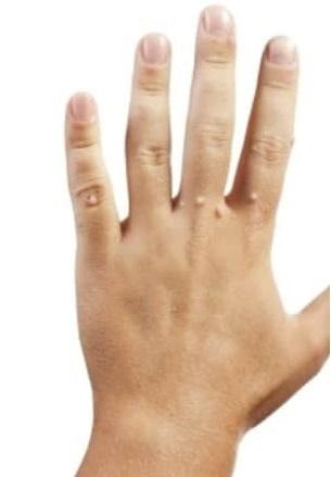 Заболевание на руке