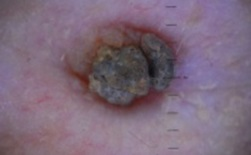 кератопапиллома