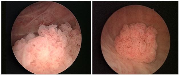 Папиллома уретры