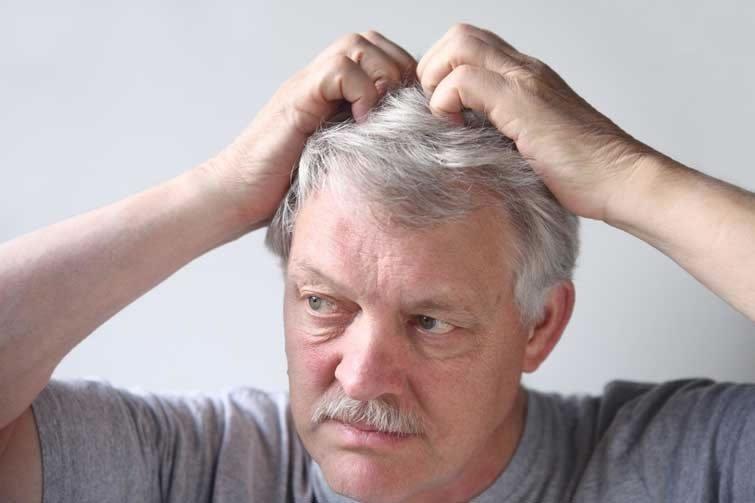Бородавки на голове