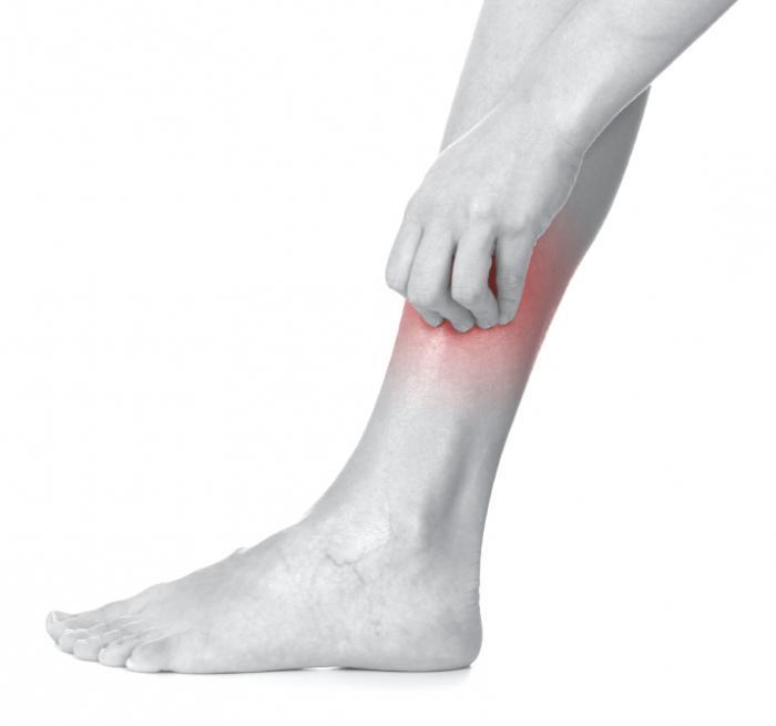 экзема на ногах