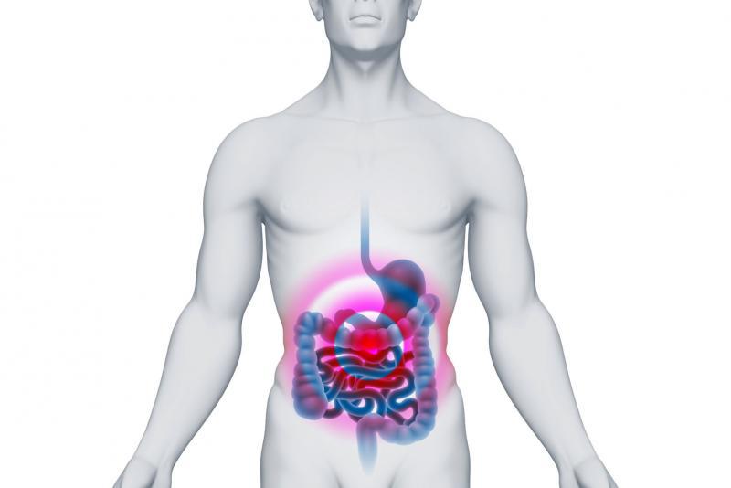папиллома в кишечнике