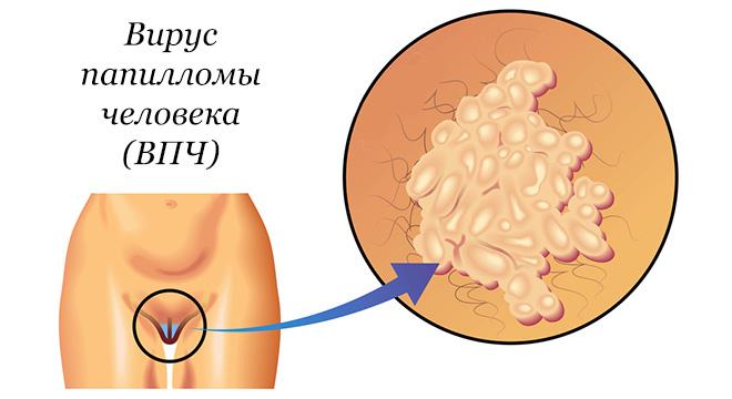 Папиллома у женщин